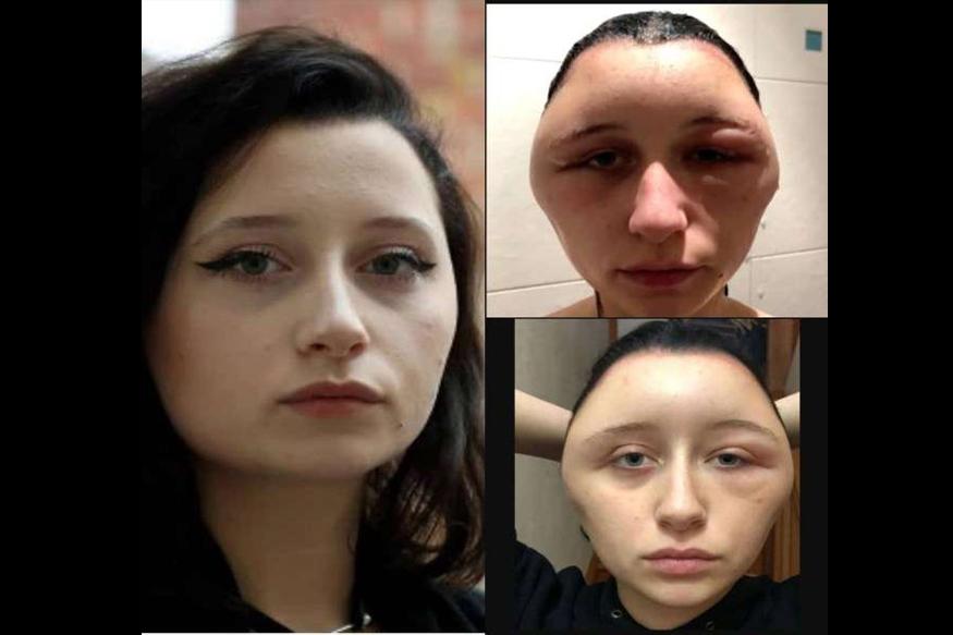 पॅरिसमध्ये राहणारी 19 वर्षीय एस्टिलने आपल्या केसांना रंग लावण्यासाठी हेअर डायचा वापर केला. पण या हेअर डायचा तिच्यावर असा दुष्परिणाम झाला की तिचा चेहराचा बदलला.