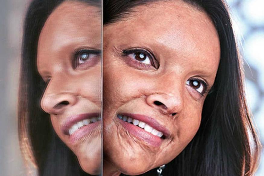 अभिनेत्री दीपिका पदुकोणनं आगामी सिनेमा 'छपाक'मधील फर्स्ट लूक सोशल मीडियावर शेअर केल्यापासून सगळीकडे तिच्याच चर्चा आहे. या सिनेमामध्ये ती दिल्लीची अॅसिड हल्ल्यातील पीडित लक्ष्मी अग्रवालची व्यक्तीरेखा साकारत आहे. दीपिका या सिनेमात हूबेहूब लक्ष्मी सारखीच दिसत असल्यानं तिच्या लूकची जोरदार चर्चा आहे. मात्र असं करणारी दीपिका पहिली अभिनेत्री नाही. तिच्या अगोदरही काही अभिनेत्रींनी अशा आव्हानात्मक भूमिका साकारल्या आहेत. जे आतापर्यंत बॉलिवूडच्या प्रसिद्ध अभिनेत्यांना जमलं नाही ते या अभिनेत्रींनी करुन दाखवलं आहे.