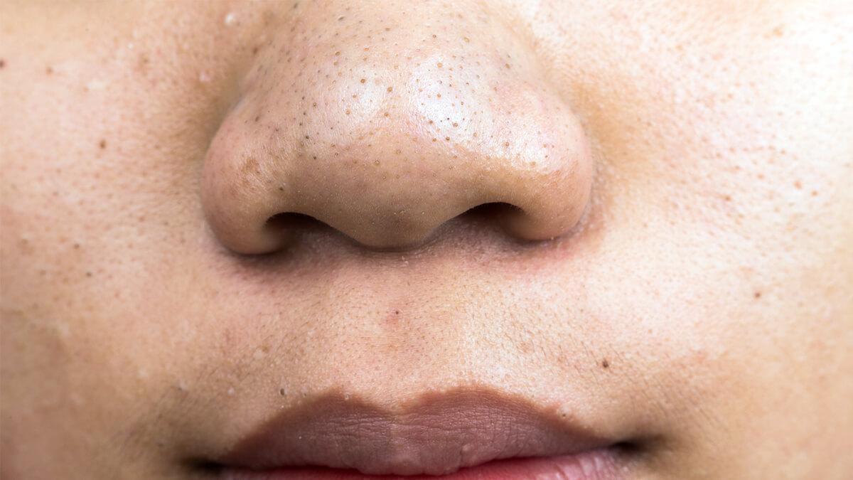 ब्लॅकहेड्स काढताना जो सर्वात आधी दिसेल तो आधी दूर करा त्यानंतर छोटे-छोटे आणि त्वचेच्या आतमध्ये लपलेले ब्लॅकहेड्स काढा. तीनदा प्रयत्न केल्यनंतरही निघत नसतील ते काढण्याचा अट्टहास करू नका. ब्लॅकहेड्स काढताना त्वचेवर डाग पडण्याची शक्यता असते त्यामुळे त्वचेवर जास्त जोर देऊ नका.
