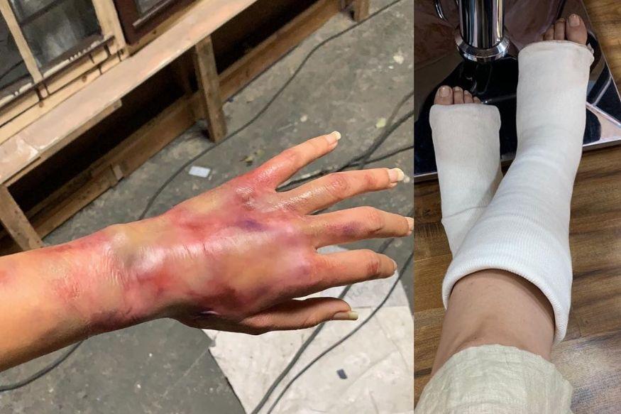 दुखापतीचे व्रण, पायात प्लॅस्टर, तापसीचे फोटो पाहून चाहते झाले हैराण