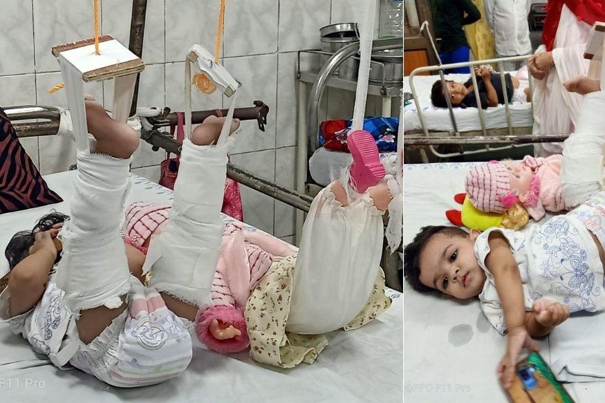11 महिन्याच्या चिमुकलीवर उपचार करण्यासाठी आईची भन्नाट आयडिया, आधी बाहुलीला बांधलं प्लास्टर!