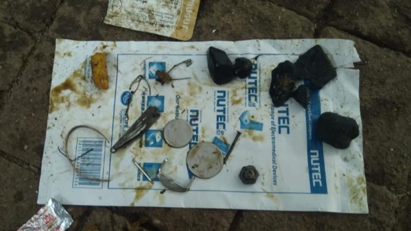 तिच्या पोटातून तब्बल ५० किलो प्लास्टिक कचरा,लेदर च्या दोऱ्या,पैश्याचे नाणे,लोखंडी कचरा आदीबाहेर काढलाय.