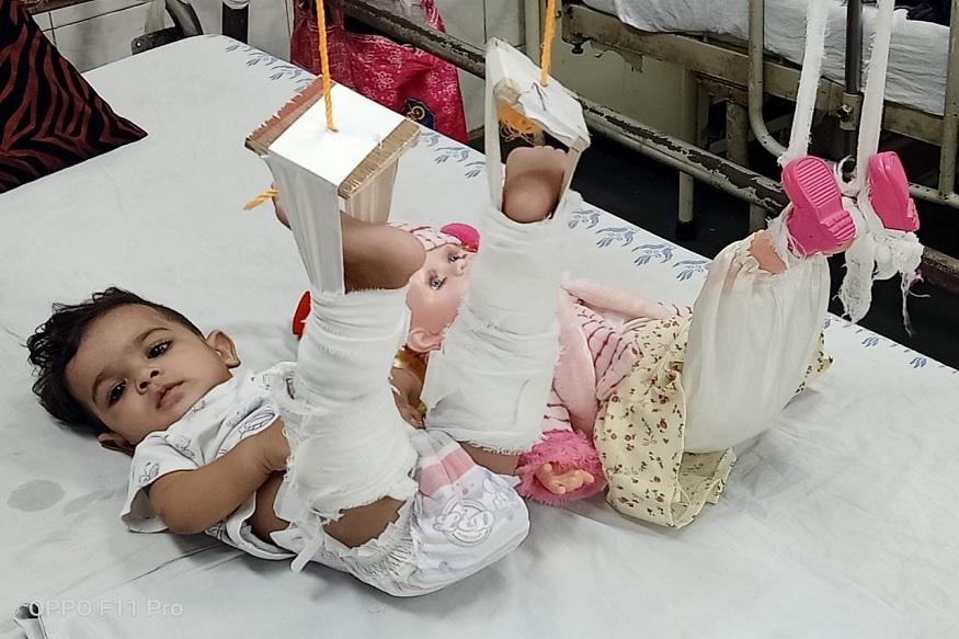 जेव्हा मला मुलीला दूध पाजायचं असतं आणि ती रडायला लागते तेव्हा मी आधी तिच्या आवडत्या बाहुलीला दुध पाजण्याचं नाटक करते आणि मग चिमुकलीसुद्धा दुध पिते असं जखमी चिमुकलीच्या आईने डॉक्टरांना सांगितलं.