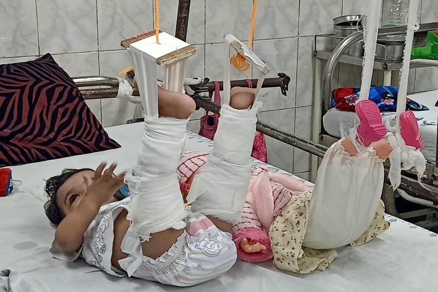 यानंतर डॉक्टरांनी आधी बाहुलीवर खोटे-खोटे उपचार केले. तिलाही प्लास्टर केले आणि मग काय मुलीनेही उपचाराला प्रतिसाद दिला.