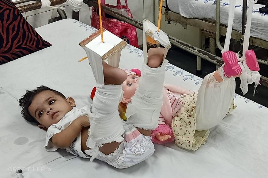ही 11 महिन्याची चिमुकली बेडवरून खाली पडल्यामुळे तिचे पाय फॅक्चर झाले होते. तिला उपचारासाठी दिल्लीच्या रुग्णालयात घेऊन जाण्यात आलं होतं.