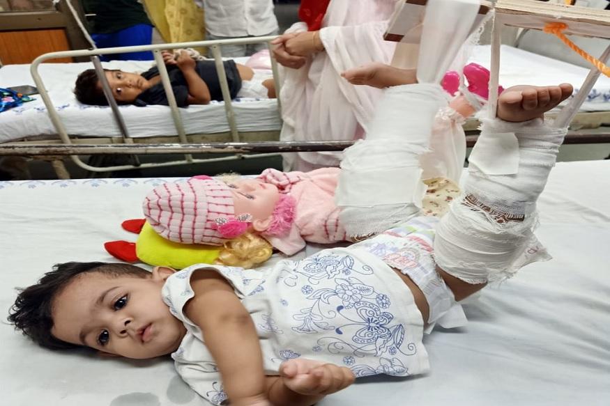 मुलीला प्लास्टर लावायचं होतं पण ती उपचाराला प्रतिसाद देत नव्हती. त्यानंतर तिच्या आईने शक्कल लढवली आणि आधी मुलीच्य़ा बाहुलीवर खोटे खोटे उपचार करा मग ती पण तसं करून देईल अशी कल्पना आईने डॉक्टरांना दिली.