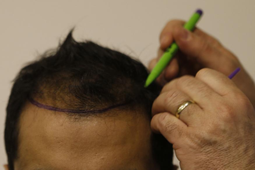 व्हिटॅमिन बी - व्हिटॅमिन बीमुळे केसाची चमक चांगली राहते. शिवाय केसांची वाढ होण्यासाठीही याचा उपयोग होतो.मशरूम, अंडी यात व्हिटॅमिन बी असतं.