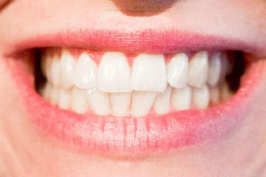 कांदा- जे लोक रोजच्या रोज कच्चा कांदा खातात ते दाताच्या दुखण्यापासून दूर राहतात. जर तुम्हाला दातांचे दुखणे असेल तर कांद्याचे तुकडे दाताजवळ धरा किंवा कांदा चावून खा. असं केल्याने काही वेळातच तुम्हाला आराम मिळेल.