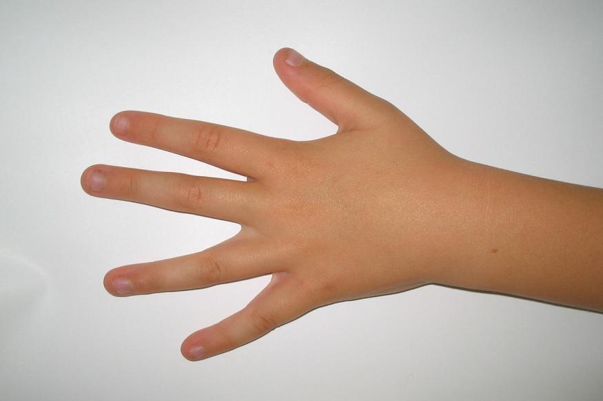 <strong>अंगठा आणि तर्जनीमधील भाग</strong> - अंगठा आणि तर्जनीच्या मधील भागावर दाब गिल्याने डोकेदुखी आणि तणाव कमी होतो. सुरुवातीला दीर्घ श्वास घ्या आणि एका हाताचा अंगठा किंवा तर्जनीने दुसऱ्या हाताचा अंगठा आणि तर्जनीच्या मध्यभागात १० सेकंद दाब द्या आणि हळूवार मालिश करा.