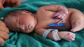 अंबाजोगाईत पाय,लिंग नसलेल्या 'मत्सपरी'चा जन्म,15 मिनिटांचं लाभलं आयुष्य!