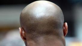 VIDEO टक्कल केल्याने डोक्यावर अधिक केस उगवतात हे खरं का?