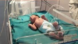 VIDEO : नाळही न कापलेल्या अवस्थेत 'ती' बाळाला कचऱ्यात टाकून गेली आणि...