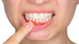हिरड्यांच्या आरोग्यवरच अवलंबून असतं दातांच सौंदर्य, 'हे' 2 आजार ठरतात मारक